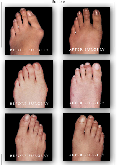 cosmetic bunion foot surgery rancho cucamonga