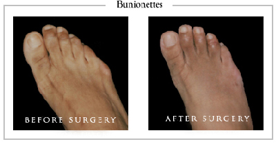 bunion surgery inland empire