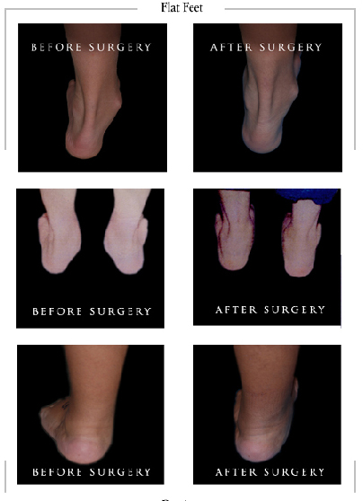 flat feet surgery inland empire